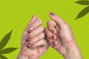 Psoriasis and CBD Supplements – How Are They Interrelated?